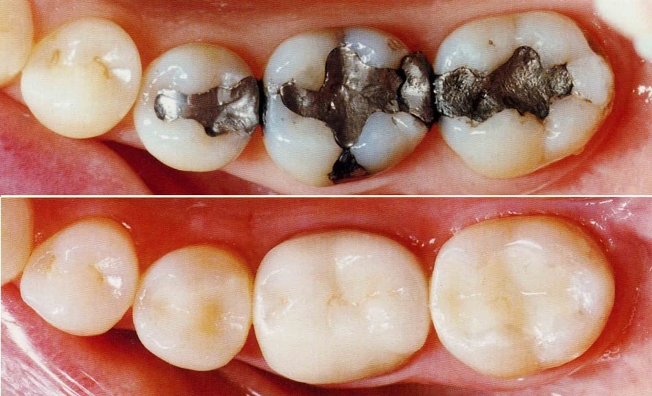 Tooth Colored Fillings   Seven Oaks Dental Centre